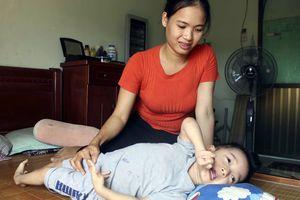 Ghép tủy - cơ hội sống còn của bé gái 4 tuổi bị bại não