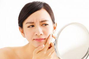 Da bị mụn cần bổ sung những chất dinh dưỡng gì?