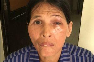 Suýt thủng giác mạc vì lấy lá rừng chữa đau mắt
