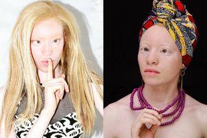 Đối thủ của Minh Tú ở Hoa hậu Siêu quốc gia là phụ nữ mắc bệnh Bạch tạng
