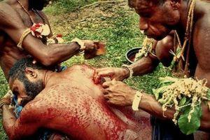 Bộ lạc nguyên thủy 'xẻ thịt' bản thân để làn da giống như cá sấu