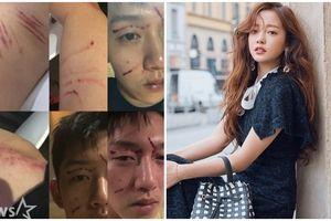 Bạn trai cũ của Goo Hara tiết lộ những hình ảnh sau cuộc ẩu đả và luôn miệng nói mình là nạn nhân