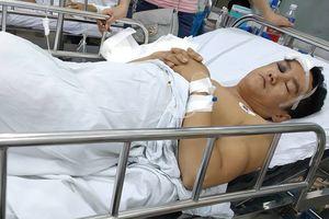 Quảng Nam: Tranh giành máy dệt, nam công nhân bị đồng nghiệp đánh vỡ sọ