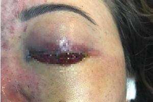 Phạt cơ sở tiêm filler gây mù mắt 120 triệu đồng và đình chỉ hoạt động 9 tháng