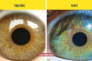 5 điều kỳ lạ có thể làm thay đổi màu mắt của bạn