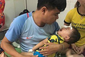 Nghệ An: Bé trai 2 tuổi bị chó nhà cắn rách mặt, tổn thương mắt