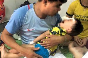 Bé trai 2 tuổi suýt hỏng mắt vì bị chó becgie nhà tấn công
