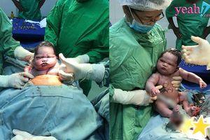 Bức ảnh gây bão nhất sáng nay - Em bé vừa được đưa ra khỏi bụng mẹ với biểu cảm không thể 'ngầu' hơn