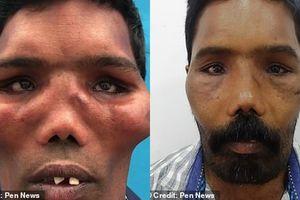Người đàn ông 'mọc xương' gò má, mặt biến dạng như sư tử vì mắc bệnh hiếm