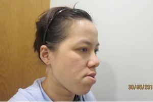 Cô giáo Bình Định thay đổi diện mạo sau phẫu thuật chỉnh hàm