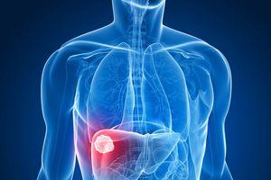 Người Việt bị ung thư gan nhiều nhất thế giới: Làm gì để phòng bệnh?
