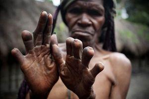 Tập tục cắt ngón tay khi có người thân qua đời của bộ tộc Dani ở Indonesia