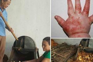 Lá tắm hỗ trợ chữa tay chân miệng chỉ 3 ngày là khỏi của y sĩ ở Lạng Sơn