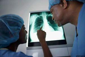 Lời khuyên để có hệ thống hô hấp khỏe mạnh