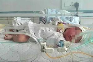 Bé gái sơ sinh chấn thương nặng do bị 'ném khỏi xe tốc độ cao'