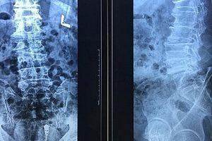 Bị biến dạng cột sống vì đắp thuốc chữa đau lưng