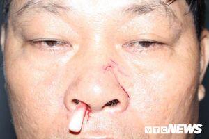 TP.HCM: Thông báo cắt điện, nhân viên điện lực bị đánh gãy sống mũi
