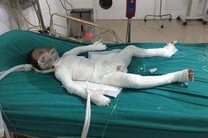 Hà Nội: Bé trai 6 tuổi bị bố dượng tẩm xăng đốt bỏng 98% đã qua đời
