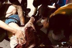 Cô gái bị thanh niên trút mưa dao trên phố Hà Nội