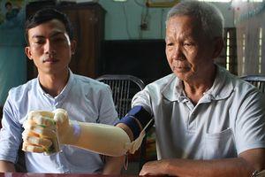 Chàng sinh viên xứ Quảng mang 'bàn tay robot' chi phí 3 triệu đồng đến với người khuyết tật nghèo