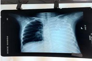 Lần đầu tiên phát hiện bé gái 10 tuổi có khối u phổi bẩm sinh