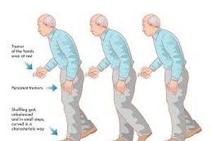 Cấy ghép thiết bị điện tử điều trị bệnh Parkinson
