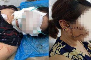 Những vụ bạo hành sau ly hôn ở Việt Nam khiến dư luận 'rùng mình'