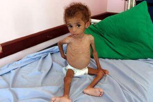 13 triệu người Yemen đối mặt thảm họa thiếu đói trong 3 tháng tới