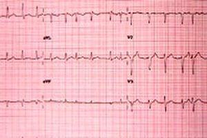 Nguy cơ mất trí nhớ liên quan trực tiếp đến hoạt động của tim