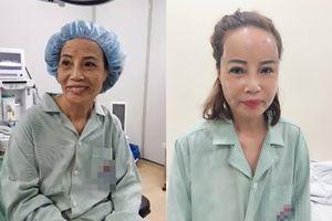 Diện mạo mới gây bất ngờ của cô dâu 61 sau phẫu thuật thẩm mỹ: Dân mạng khen trẻ như mới 40