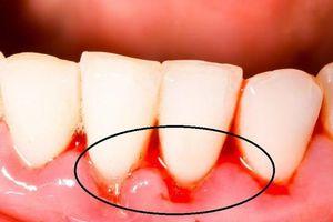 Bà bầu bị chảy máu chân răng: Nguyên nhân và cách khắc phục an toàn nhất
