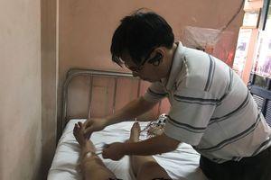Giãn tĩnh mạch: Biết nguy cơ gây bệnh để phòng ngừa hiệu quả