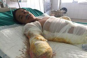 Người đàn ông nghèo bị cắt cụt tay vì bỏng điện, tính mạng nguy kịch