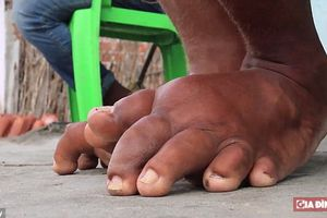 WHO công nhận Việt Nam loại trừ được bệnh giun chỉ bạch huyết