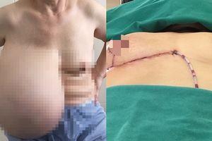 Lệch cột sống vì 'đeo' khối u vú gần 9kg hàng chục năm