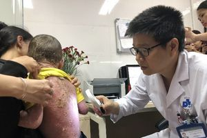 Bệnh vẩy nến thể mủ toàn thân: Nỗi ám ảnh của người bệnh