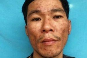 Gã nghiện đối phó với Công an bằng… lựu đạn
