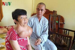 Người phụ nữ 35 năm mang khối bướu gần 10kg trên cổ