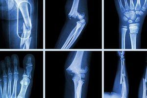 5 sự thật về xương người ai cũng tưởng đúng nhưng hóa ra lại sai bét