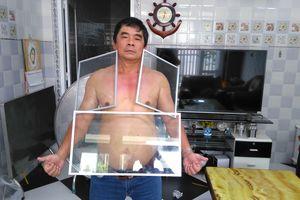 Người đàn ông Tiền Giang 'kỳ lạ' hút kim loại, đá dính chặt người
