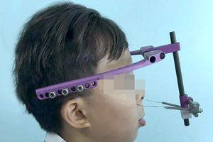Lần đầu tiên ở Việt Nam chữa dị dạng khuôn mặt cho bệnh nhân không cần phẫu thuật