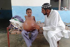Xót xa cậu bé 9 tuổi có bụng to gấp 3 lần kích thước quả bóng