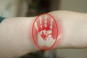 Ngăn ngừa bệnh tim mạch và huyết áp nhờ vỗ mạnh khuỷu tay