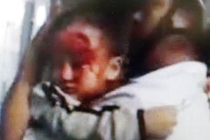 Cha ôm con 3 tuổi máu chảy đầm đìa mỏi mắt tìm bác sĩ trong bệnh viện