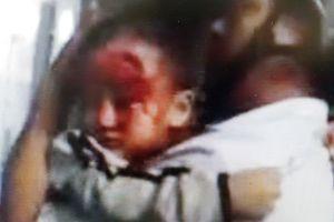 Bệnh viện vắng tanh, cha ôm con bị thương tìm bác sĩ kêu cứu