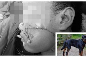 Bé trai 2 tuổi bị bị chó nhà hàng xóm cắn mắt lòi ra ngoài
