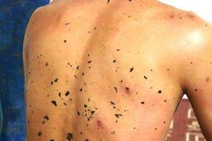 Một người tử vong, 10 người bị thương vì ong vò vẽ