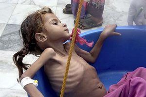 Người Yemen đứng trên bờ vực trải qua nạn đói kinh hoàng nhất lịch sử