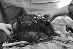 Người phụ nữ mang khối u xơ tử cung 'khủng' gần bằng thai 7 tháng tuổi