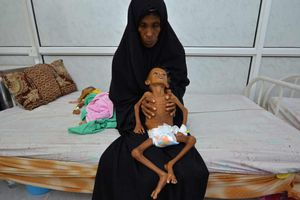 Nạn đói ở Yemen có thể trở thành 'sự kiện kinh hoàng' nhất lịch sử nhân loại